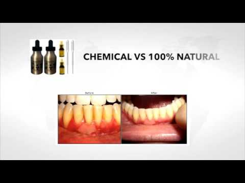 Dental Pro 7 for Eliminate Bacteria in your mouth   Extremely powerful